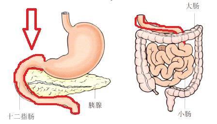 十二指肠炎有哪些症状?