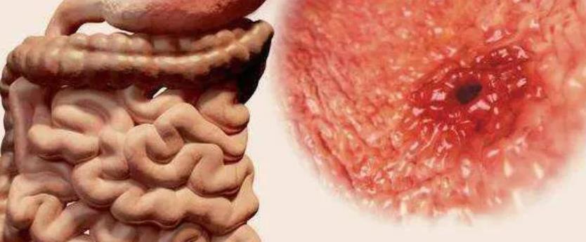 肠胃炎快速缓解小妙招肠胃炎不去看会自愈吗